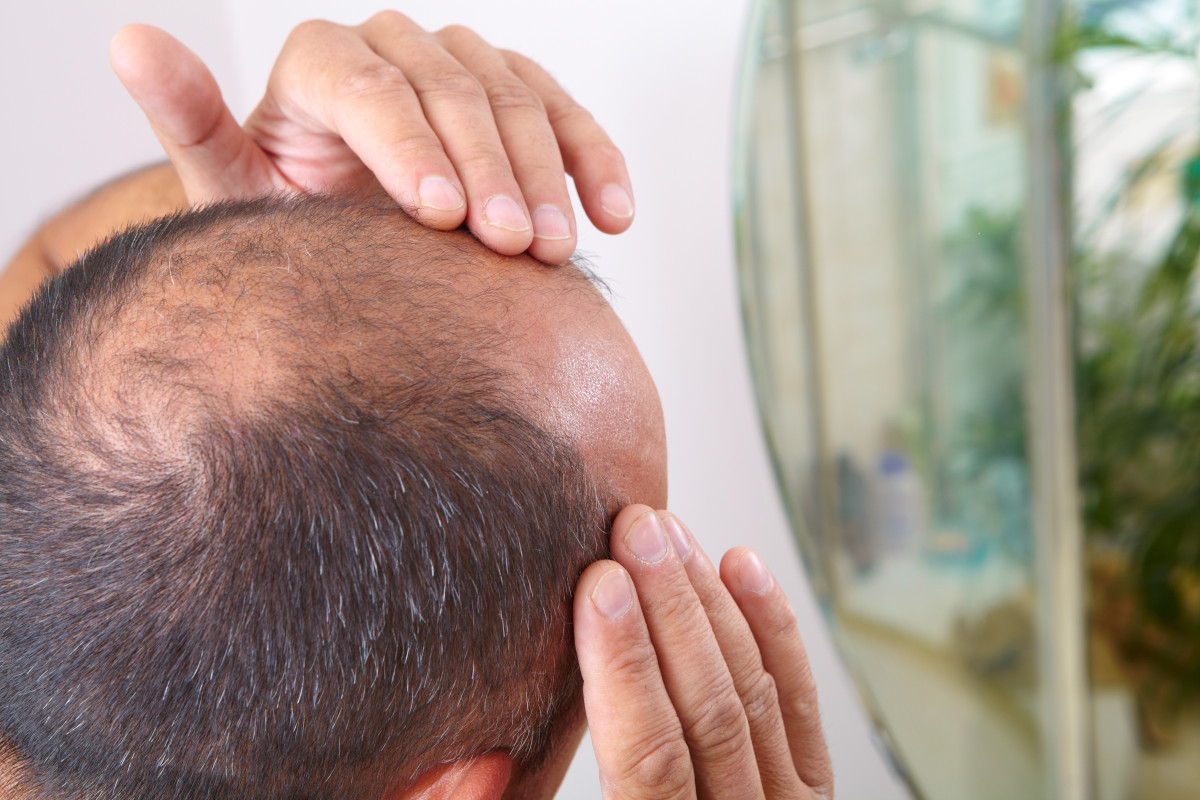 Laut Studie kann Haarausfall ein Coronavirus-Symptom sein